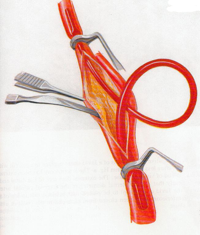 carot-wylie-11